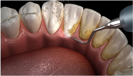 Panoramic view of lower jaw showing plaque buildup and damaged gums because of Gingivitis to be treated at 4SquareDentistry