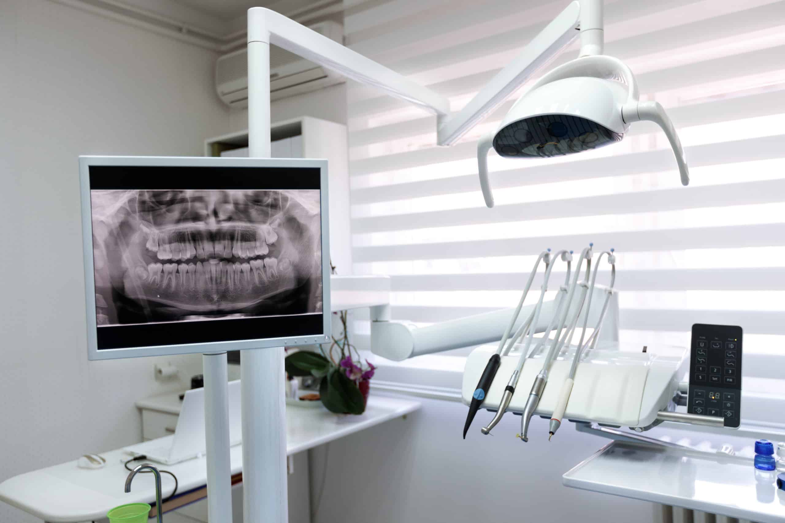 Digital x-ray displayed in the advanced technology dental clinic in medavakkam